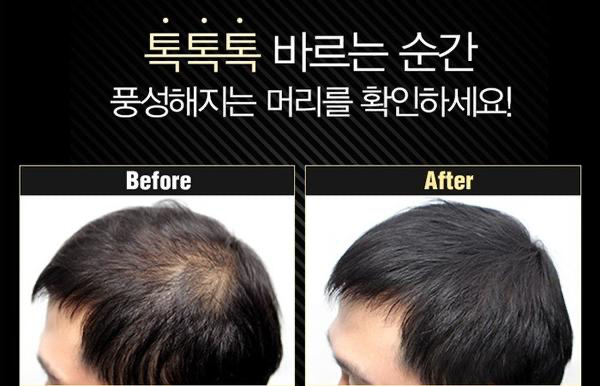 SeoulMills Anti-Hair Loss Hair Cushion is perfect for hair loss.