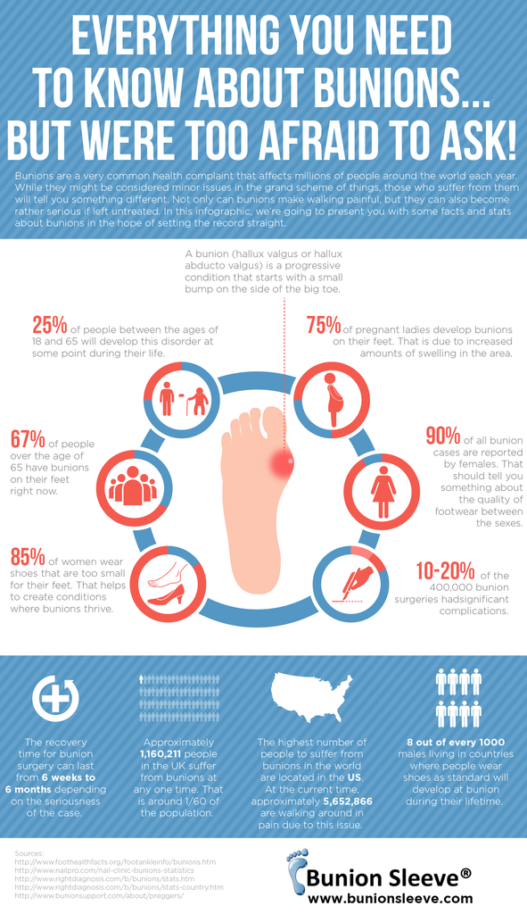 infographic everything you need to know about bunions