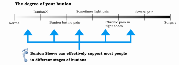 Bunion Sleeve: Bunion Severity Chart