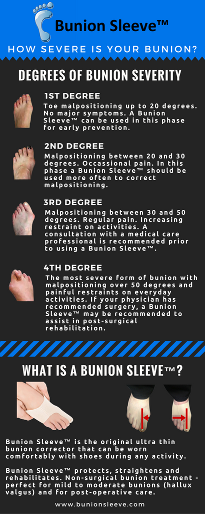 how severe is your bunion