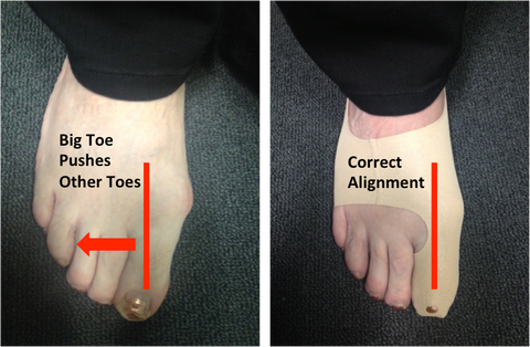 How To Straighten Your Bunion Naturally