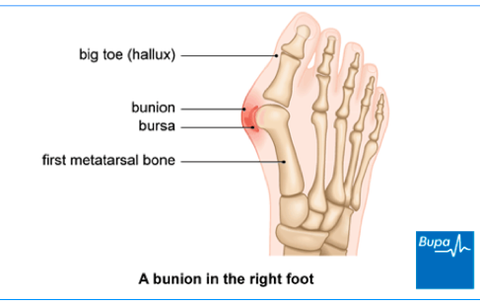 diagram of bunion