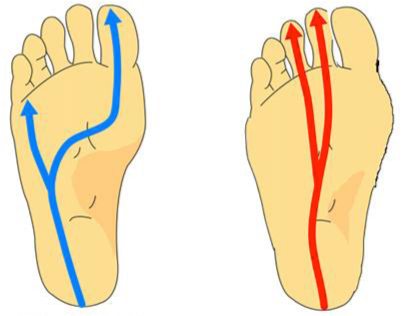 flat foot versus normal foot