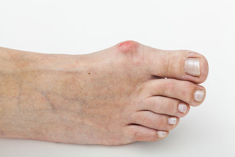 How to improve your bunion today...