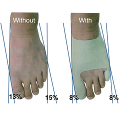 big toe and small toe correction with bunion sleeve plus