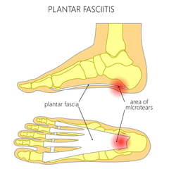 plantar fasciitis symptoms