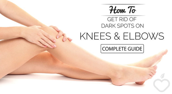 How To Get Rid Of Dark Elbows and Knees!