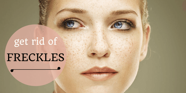 Get Rid Of Freckles In No Time!