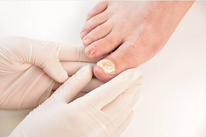 Reduction & management of thick/fungal nails
