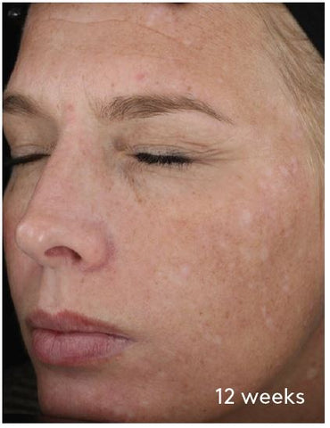 woman's face with reduced hyperpigmentation - 12 weeks