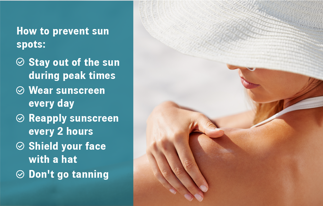 How to Prevent Sun Spots
