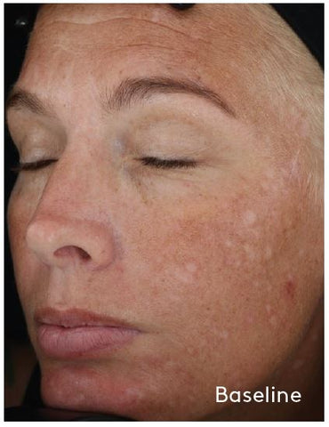 woman's face with hyperpigmentation - baseline