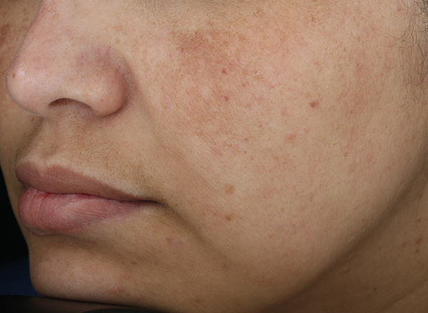 clinical study subject - nose, lips and cheeks visible - week 0, bare skin