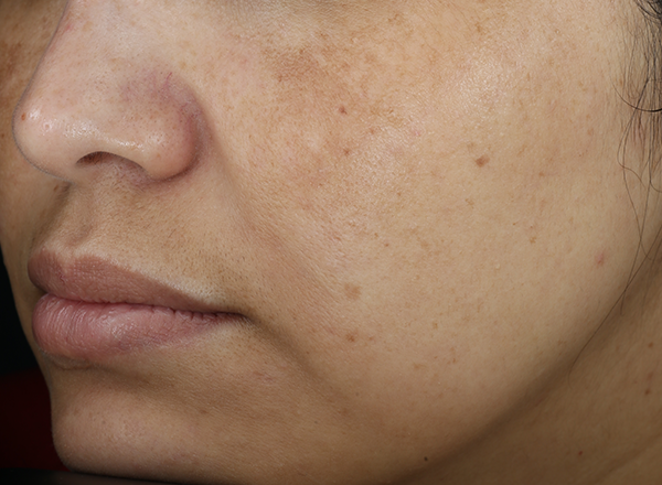 clinical study subject - nose, lips and cheeks visible - week 8, bare skin