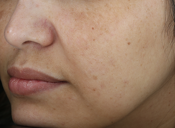 clinical study subject - nose, lips and cheeks visible - week 12, bare skin