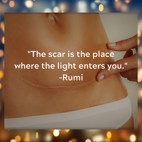 "woman pointing to the c-section scar on her belly with a quote by Rumi: ""The scar is the place where the light enters you."""