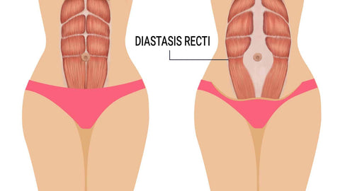 image of a woman's core stomach with Diastasis Recti (DR)