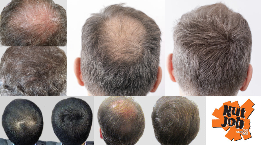 How To Hide Hair Loss At The Crown with Pictures