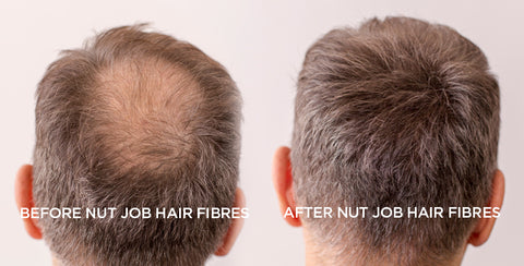 How to hide hair loss at the crown male