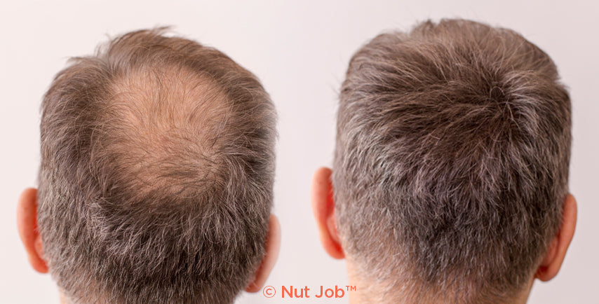 Kalvin before and after using Nut Job Hair Fibres