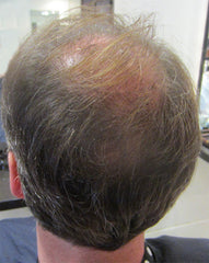 How to hide hair loss balding spot at the crown