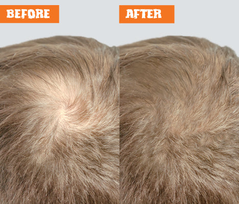 Nut Job Light Brown Hair Fibres Before and After