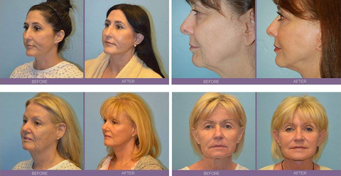 ems-facial-before-and-after