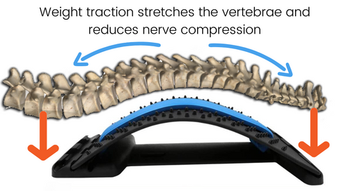 BackForce™ stretches the vertebrae and reduces pain from nerve compression