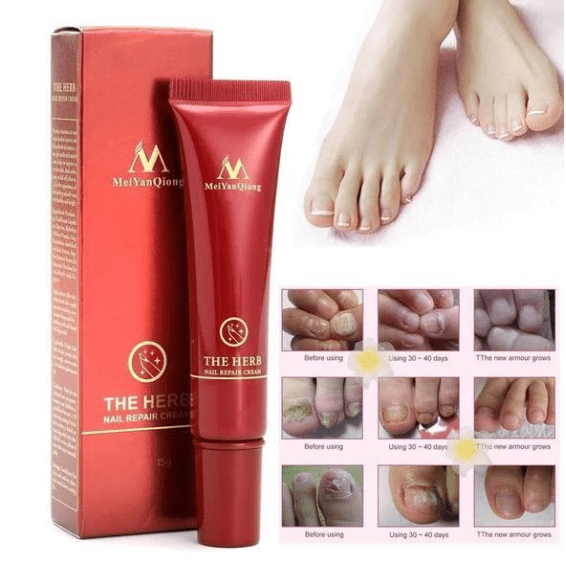 Nail Treatment Cream - VESSII
