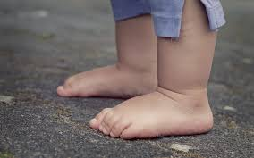 What To Do About Flat Feet?