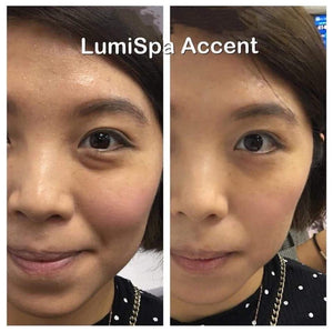 ageLOC LUMISPA ACCENT KIT