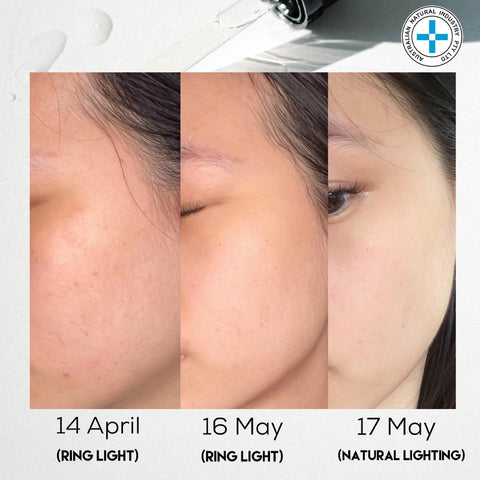 before and after skincare review sg ani natural