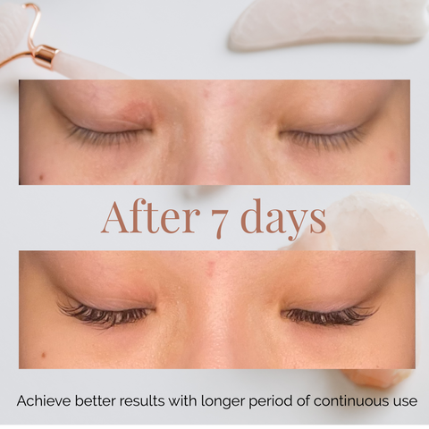 skincare before and after review eye cream eye bags