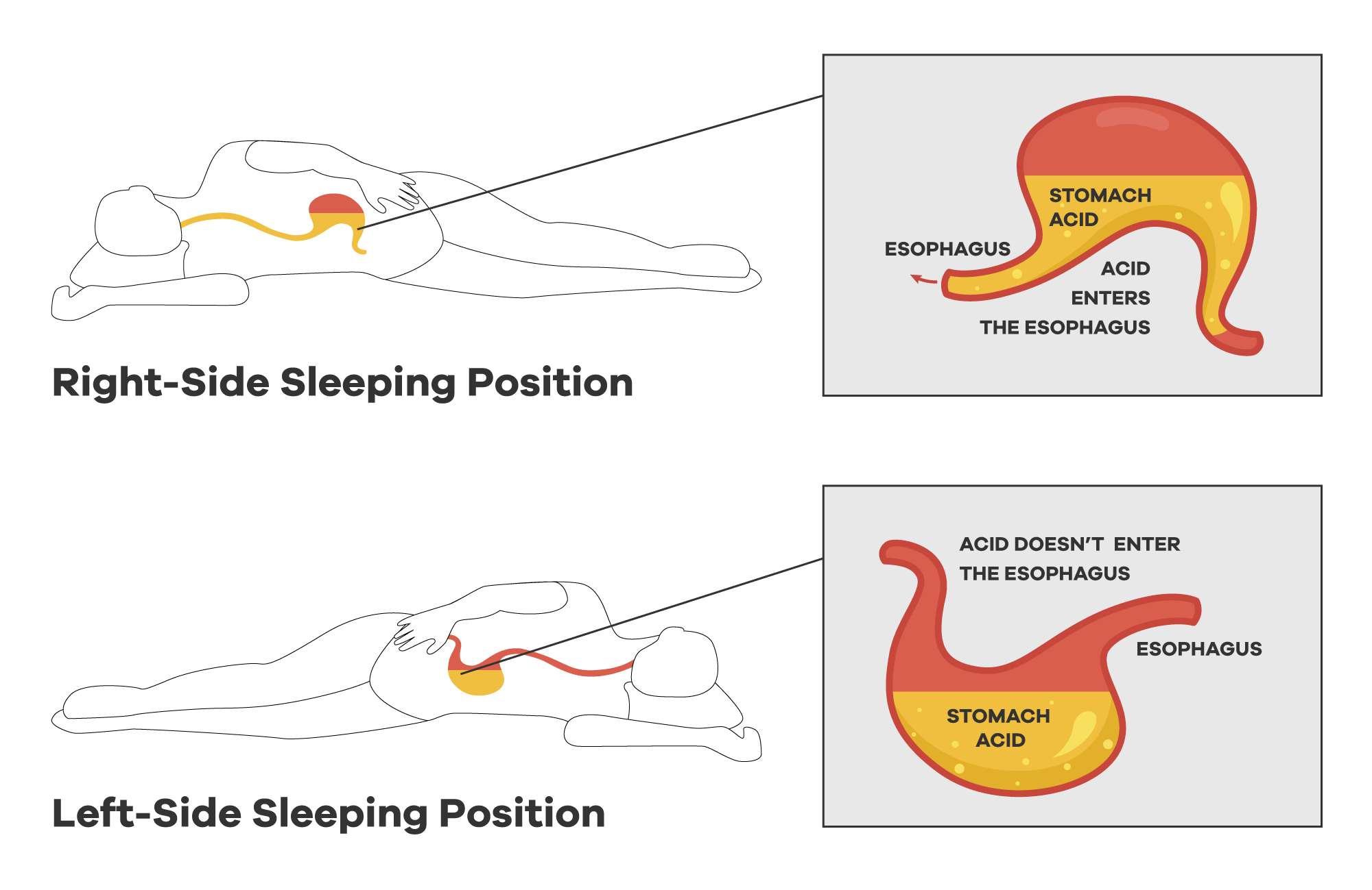 The LEFT Sleep Position Training Device