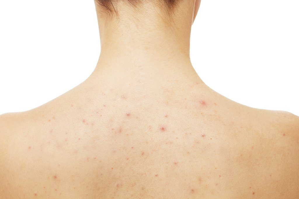 Back Acne Causes