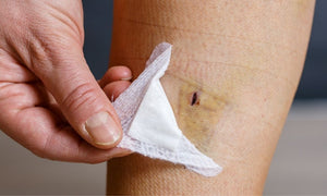 How to Prevent Infection Post-Surgery