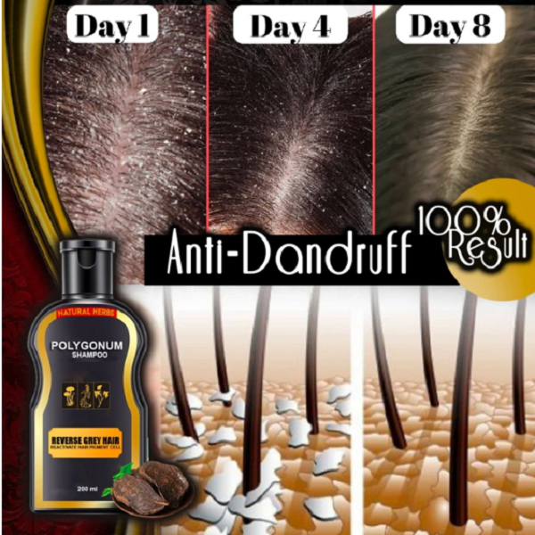 【 Limited Free Shipping Promotion】Anti-Hair Loss & Hair Darkening Organic Plants Shampoo