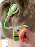 Tube twist for cochlear implants and hearing aids