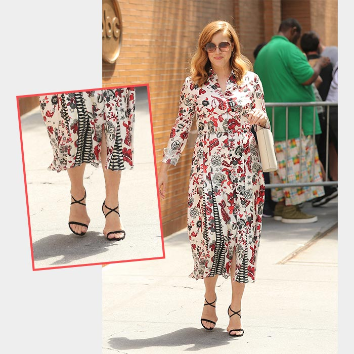 Amy Adams Celebrity with Bunions