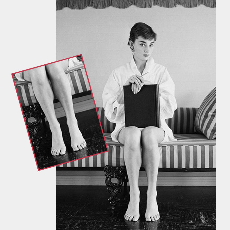 Audrey Hepburn Suffered from Mild Bunions & Wide Feet