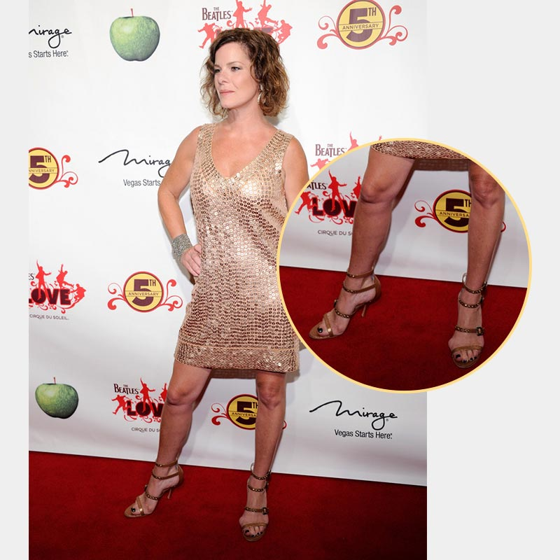 American Actress is a Bunion Sufferer