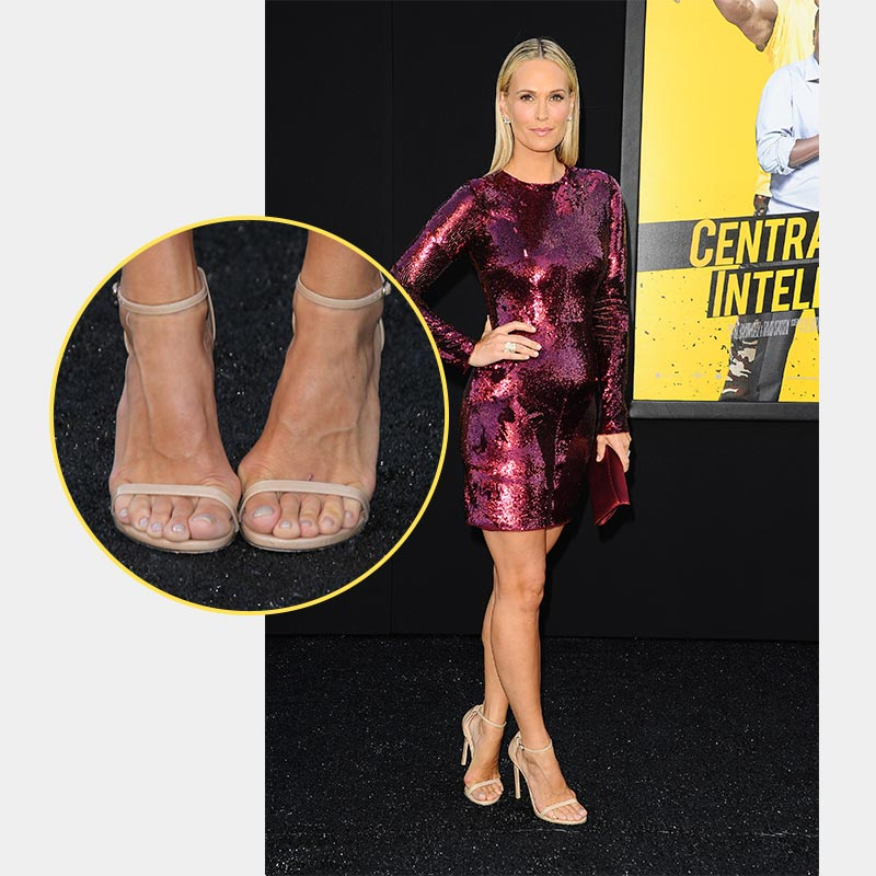 American Actress has Bunions