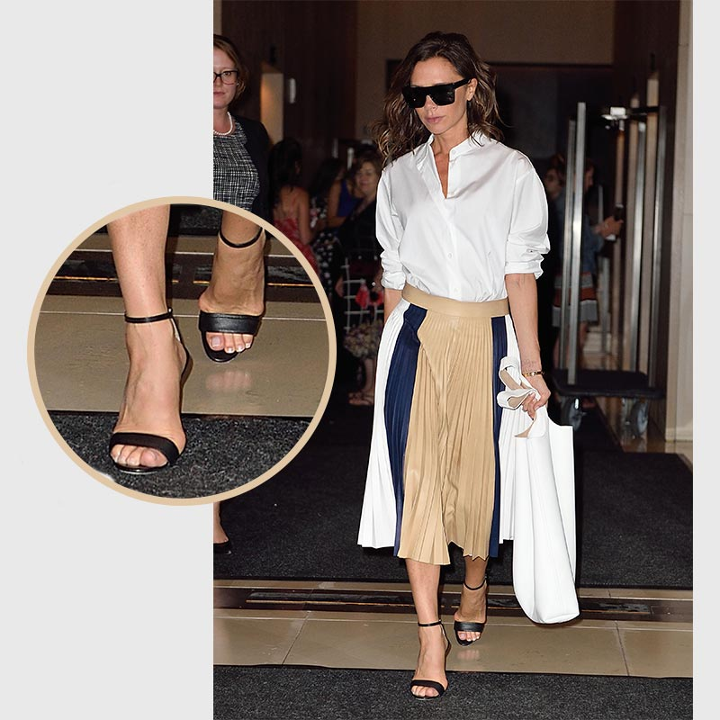 Former Spice Girl, Victoria Beckham has Bunion Removal Surgery