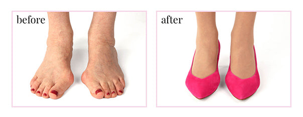 Diagram showing the before & after affects of wearing Sole Bliss shoes to hide bunions