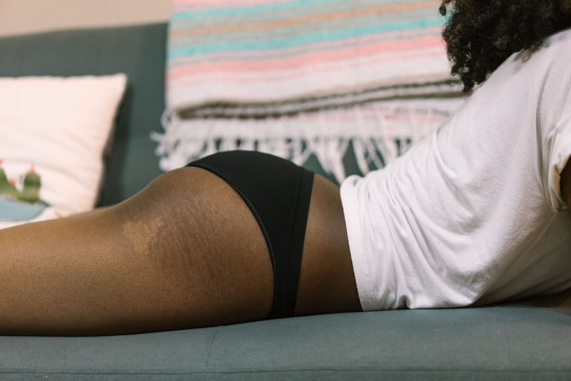 Can you use coconut oil for stretch marks?