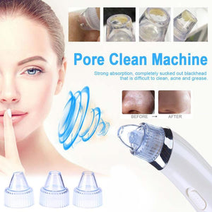 Vacuum blackhead cleaner