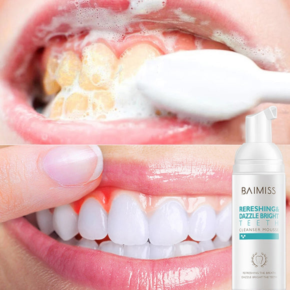 Fresh Shining Tooth-Cleaning Mousse Toothpaste Teeth Whitening Oral Hygiene Removes Plaque Stains Bad Breath Dental Tool - 88digital