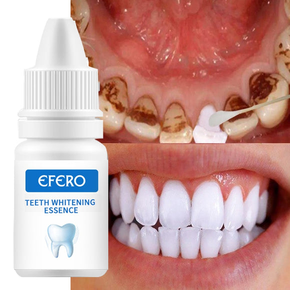 Teeth Whitening Serum Gel Dental Oral Hygiene Effective Remove Stains Plaque Teeth Cleaning Essence Dental Care Toothpaste - 88digital