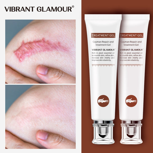 VIBRANT GLAMOUR Repair Scar cream Removal Acne Scars Gel Stretch Marks Surgical Scar Burn Body Pigmentation Corrector Care 2pcs