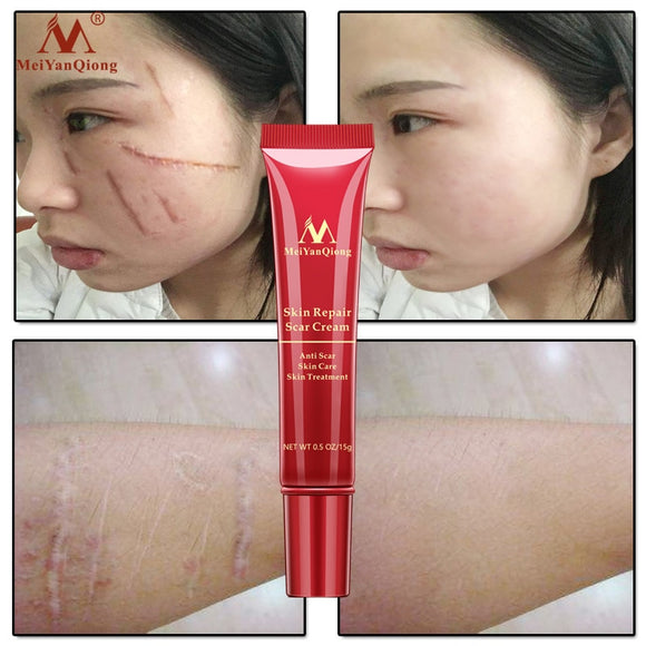 Hot sale Scar Repair Cream Skin Care Natural Acne Remove Burn Stretch Marks Scar Removal